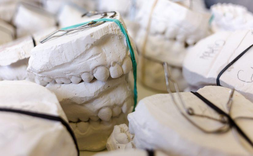 Zły sposób odżywiania się to większe niedostatki w zębach natomiast także ich zgubę